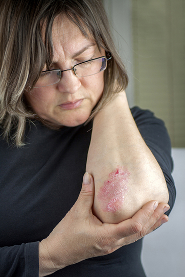 Laser Therapy For Psoriasis
